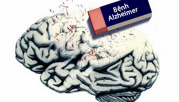 Bệnh Alzheimer khiến người mắc bị suy giảm trí nhớ và dần mất đi nhận thức