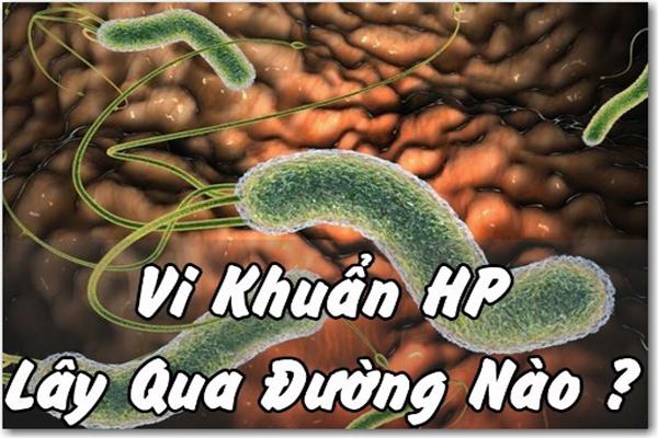 Vi khuẩn Hp trong bệnh dạ dày có lây qua đường ăn uống không?