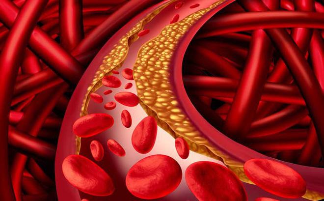 Bệnh mỡ máu – kẻ thù của cơ thể