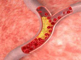 Bệnh mỡ máu là gì?